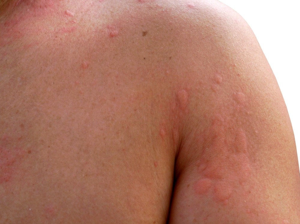 Hives (urticaria): Triggers and treatment - DocFinder co uk
